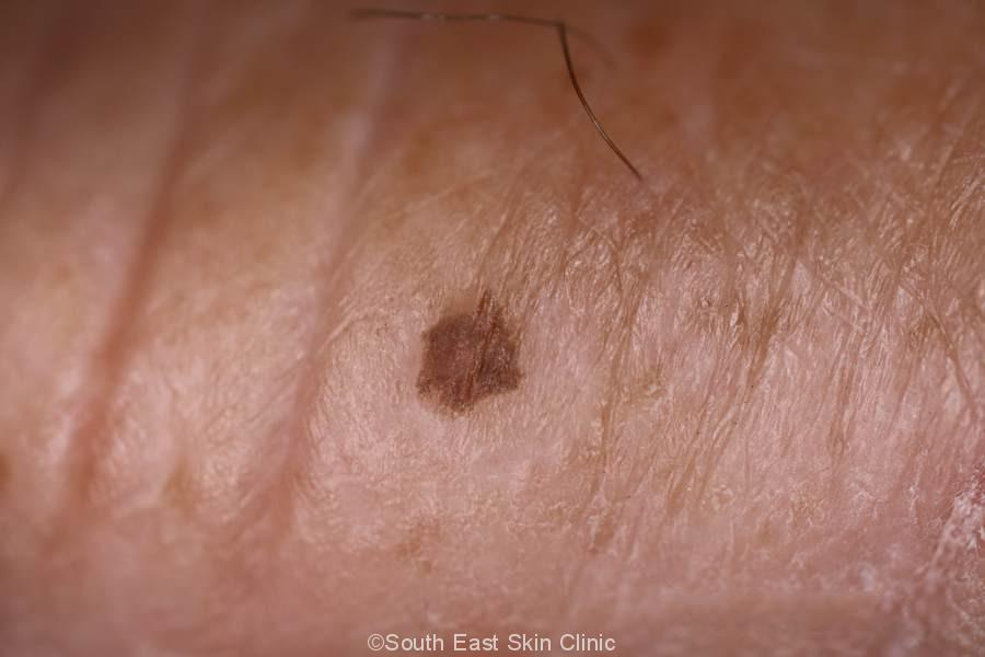 Seborrhoeic Keratosis on the thumb