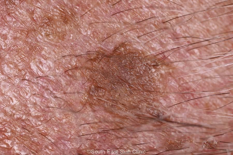 Seborrhoeic Keratosis on the scalp