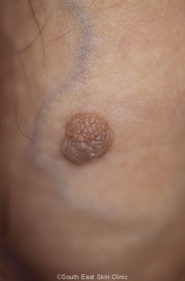 seborrhoeic keratosis on shaft of penis